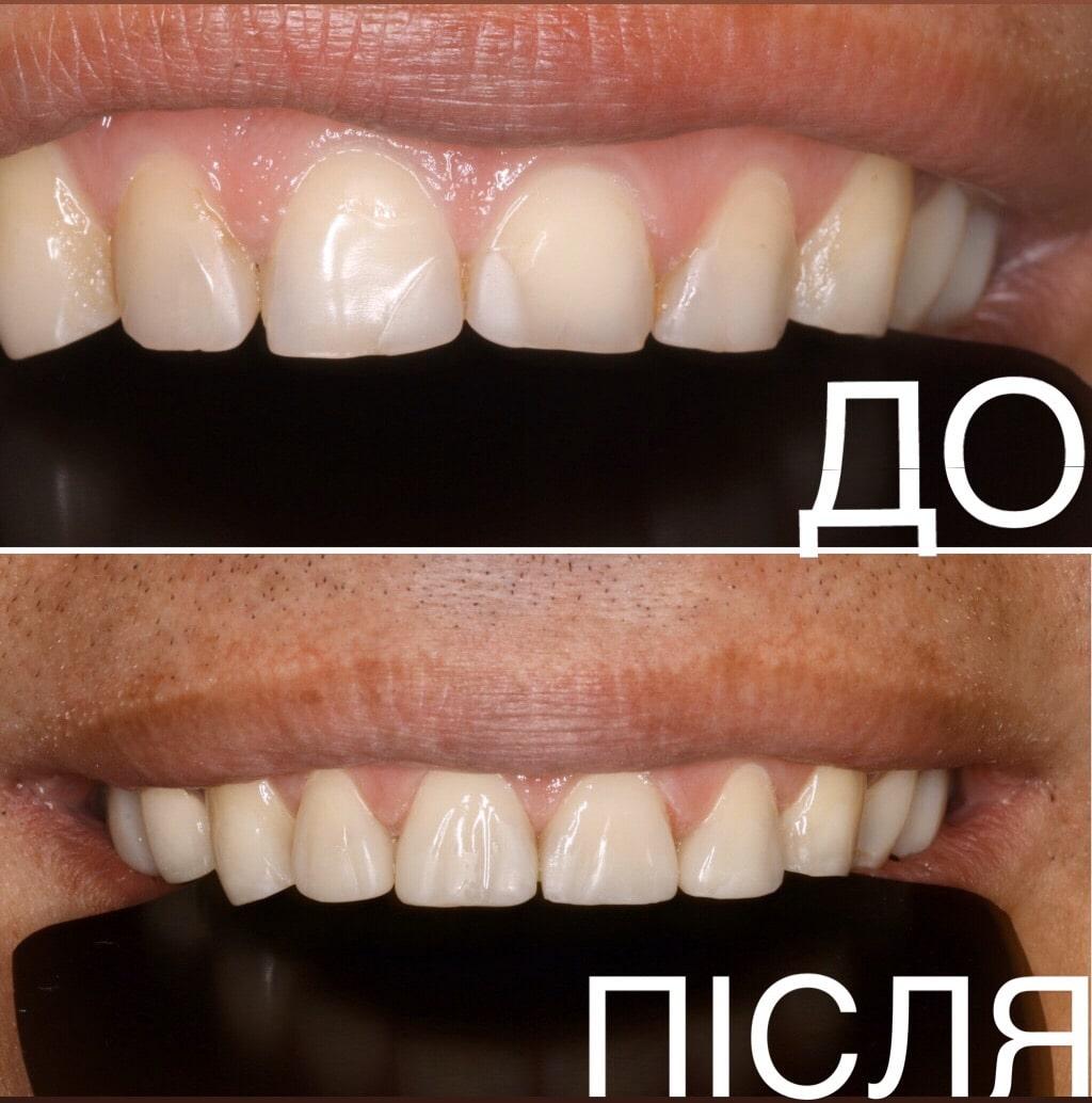 художественная реставрация зубов Киев Голосеевский район