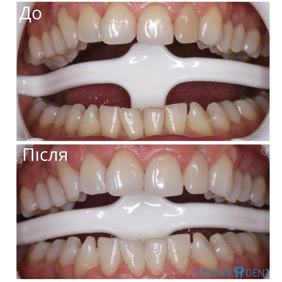 відбілювання зубів фото до та після