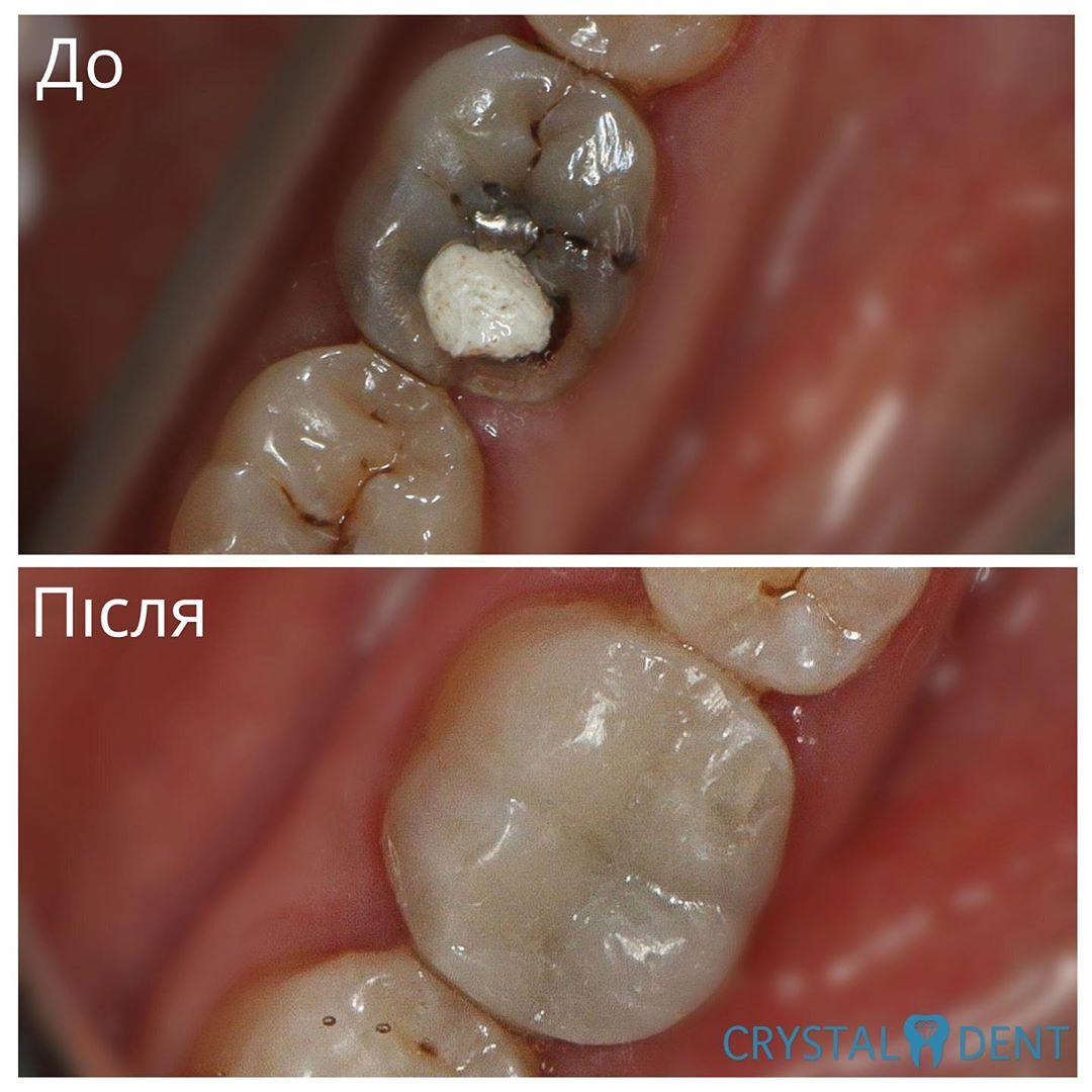 реставрация зубов киев голосеевский район фото до и после