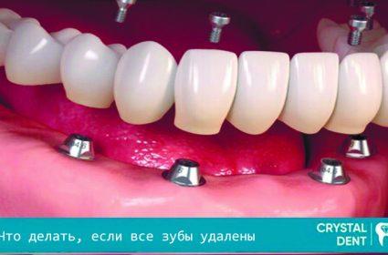 Восстановление зубного ряда, если все зубы удалены