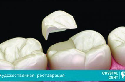 Преимущества художественной реставрации зубов