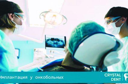 Особенности имплантации зубов у онкобольных