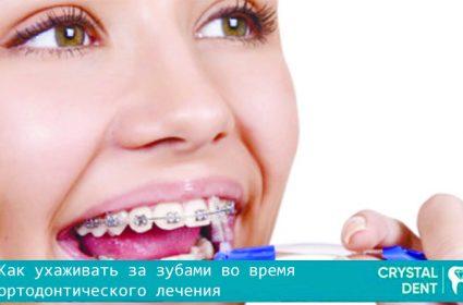 Правила ухода за полостью рта при ортодонтическом лечении