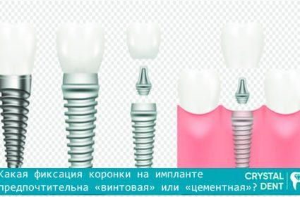 Сравнение цементной и винтовой фиксации коронок на имплантах
