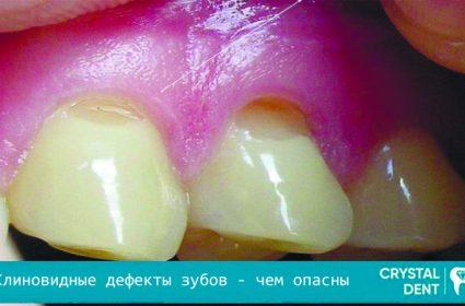 Клиновидные дефекты зубов – чем опасны