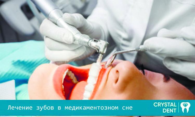 Особенности лечения зубов в медикаментозном сне