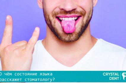 Болезни языка, которые может распознать стоматолог