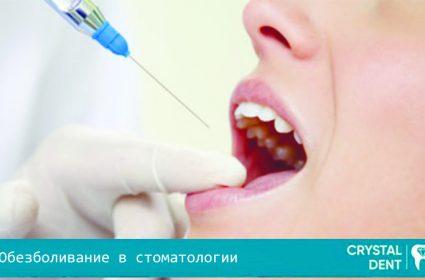 Варианты обезболивания в стоматологии