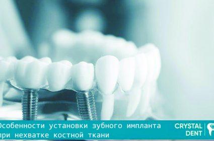 Особенности установки зубного импланта при нехватке костной ткани