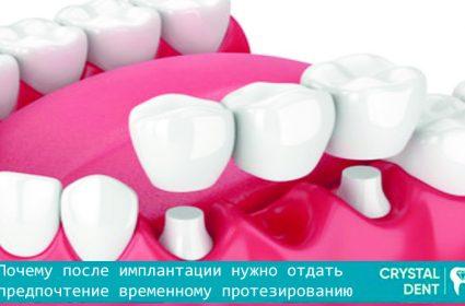 Необходимость временного протезирования после имплантации