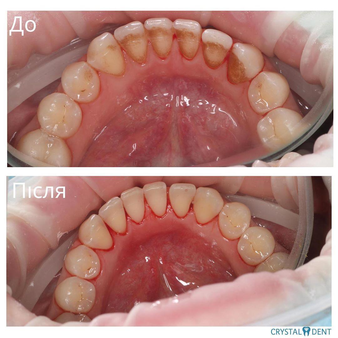 зняття зубного каменя до та після