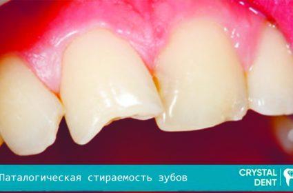 Патологическая стираемость зубов – опасность и терапия