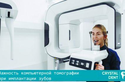 Важность компьютерной томографии при имплантации зубов