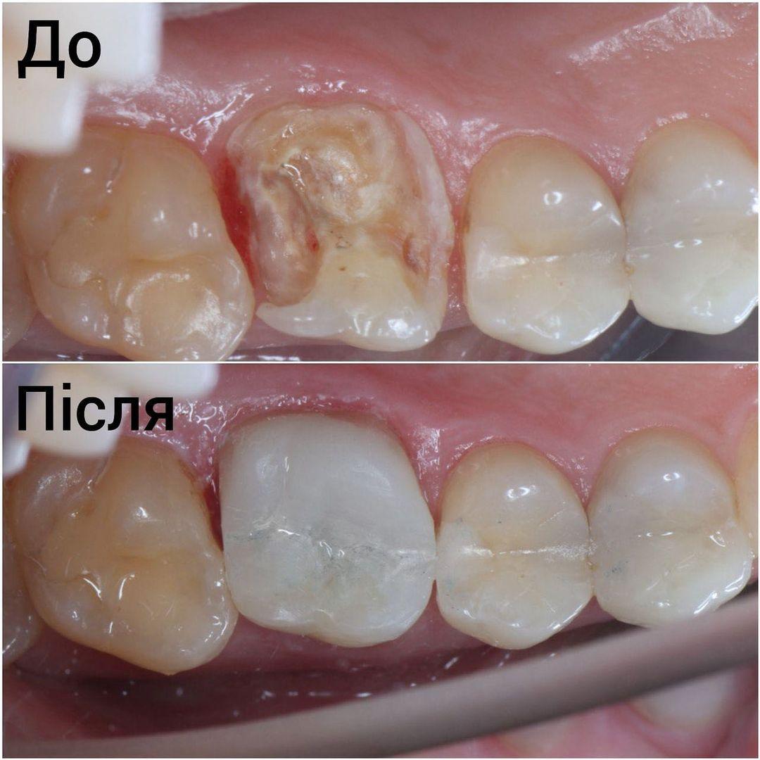 Реставрация жевательного зуба работа доктора Юхименко
