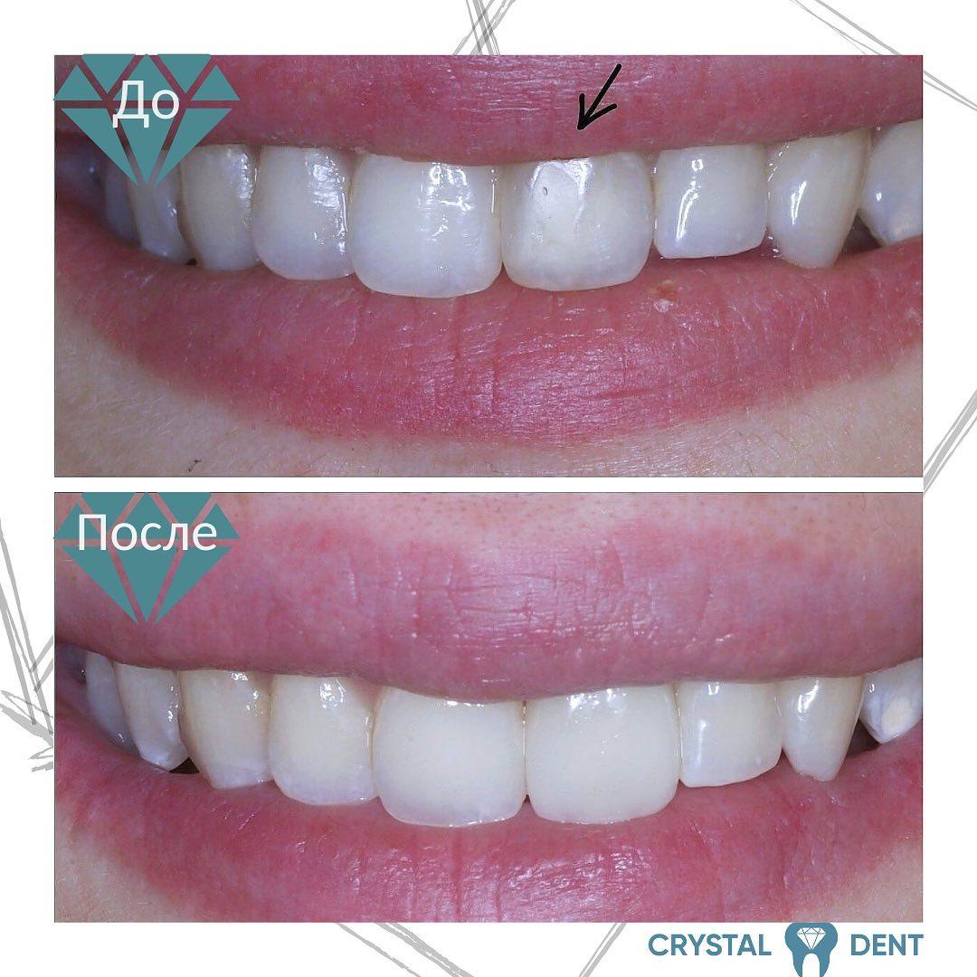 Восстановление фронтального зуба виниром