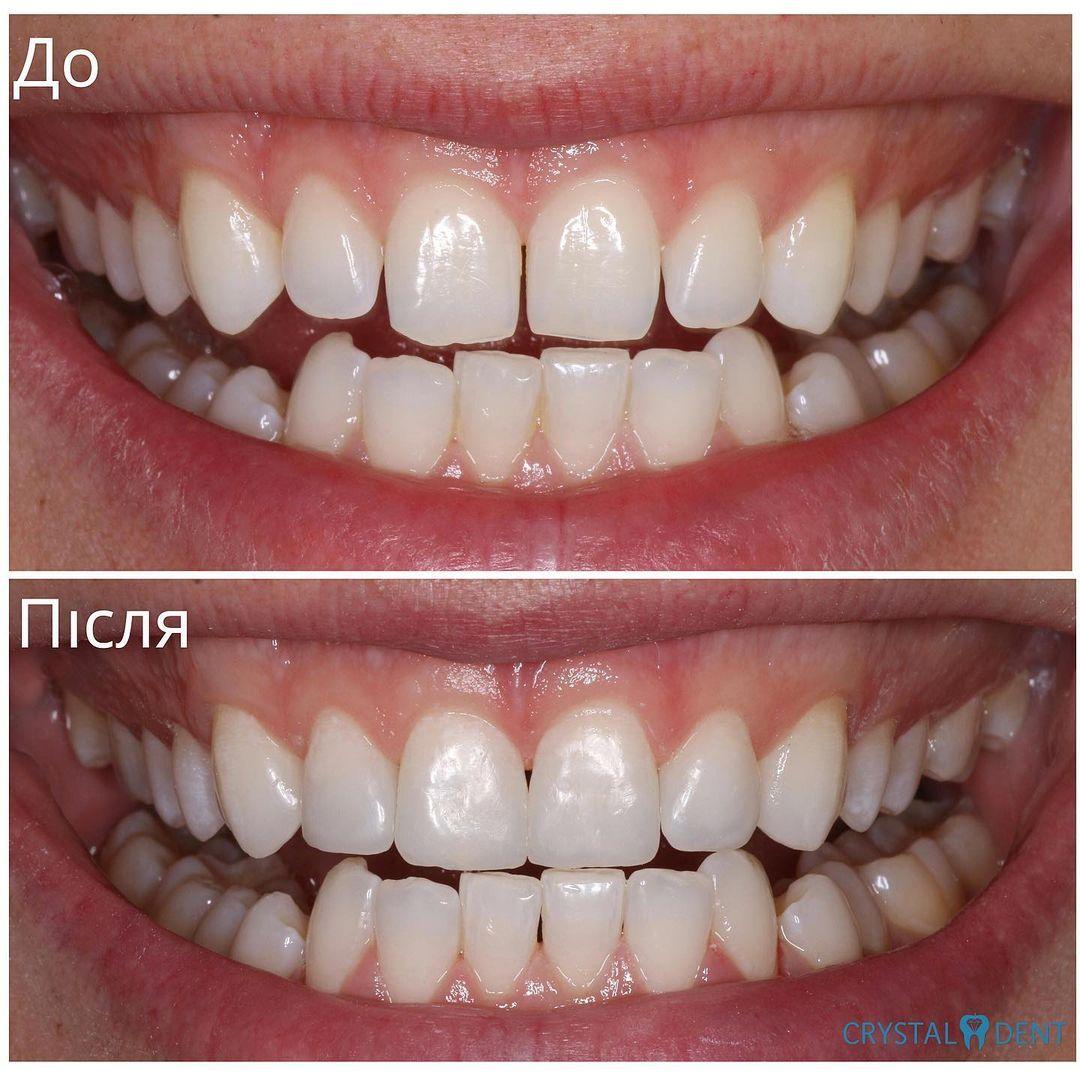 Прямая реставрация фронтальной группы зубов для закрытия диастемы и трем
